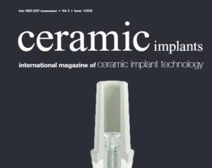 Ceramic Imlants - International Magazine