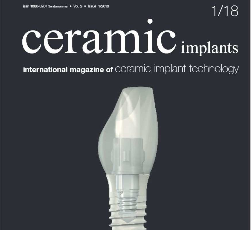 CERAMIC IMPLANTS – INTERNATIONAL MAGAZINE OF CERAMIC IMPLANT TECHNOLOGY – VOL 2