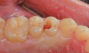 Fractured Premolar