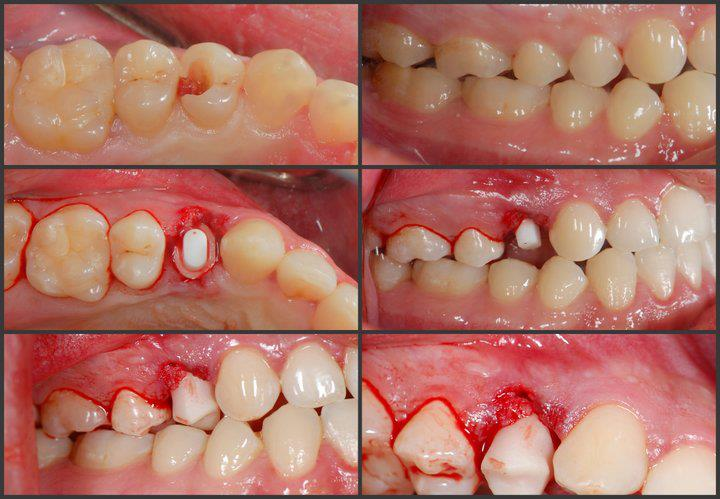 Replacing Maxillary Right Premolar with CeraRoot 14